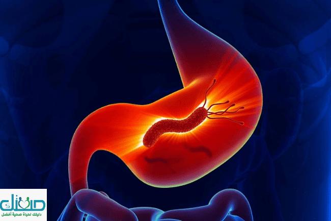 اعراض الميكروب الحلزوني عند الاطفال وعلاج جرثومة المعدة وكيفية التعامل معه