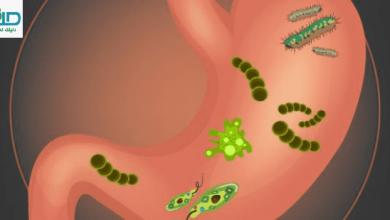 علاج الميكروب الحلزوني بالاعشاب والقضاء على جرثومة المعدة وأعراضها