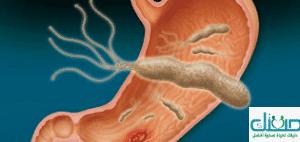 ما هي افضل طرق علاج الميكروب الحلزوني