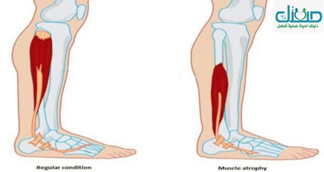 ضمور العضلات وأسباب الإصابة وطرق علاج الضمور في العضلات