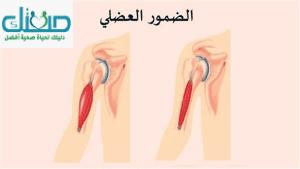 ما هي اعراض الضمور العضلي