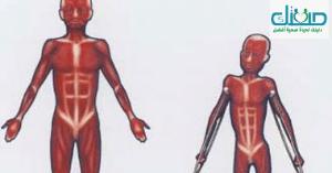 هل ضمور العضلات خطير؟