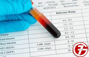 ما هو تحليل CRP positive والكورونا