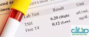 ما هو تحليل الغدة الدرقية TSH منخفض
